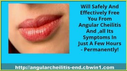 Cracked Corners Of Mouth, Cheilitis, Angular Cheilitis Remedy, Angular Cheilitis Medicine, Cheilitis
