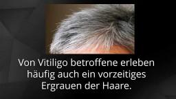 Pigmentflecken, Vitiligo Komplett Geheilt, Pigmentflecken Oberlippe, Vitiligo Heilung, Vitiligo