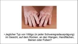 Protopic Vitiligo, Weiße Flecken Am Rücken, Pigmentflecken Im Gesicht Entfernen, Flecken Haut