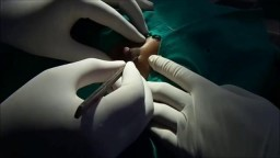 Fibrodenoma Removal With Local Anesthesia