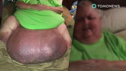 Ingrown hair turns into 140 Lbs tumor in man's stomach