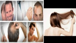 How To Stop Hair Loss Naturally, Hair Regrowth Shampoo, Tips For Hair Regrowth, Hair Loss Stop