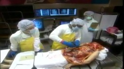 Medical Videos - Human Body Medical Autopsy for Poison