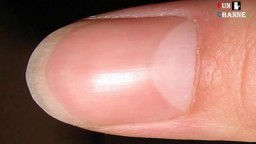 Half Moon Shape on Your Nail Causes