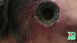 Watch how black salve left inch-wide hole in man's face