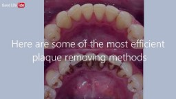 How To Remove Plaque on Teeth Without Visiting The Dentist