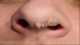 Como Eliminar Verrugas, Tratamiento Para Verrugas Genitales, Como Sacar Verrugas, Verrugas Planas