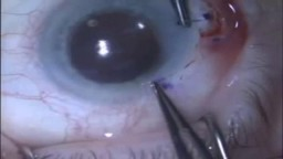 First corneal suture during cataract surgery