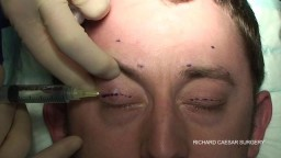 Silicone Brow Suspension of Eye Lid