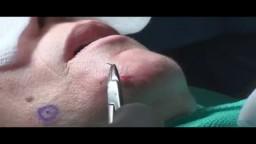 Mole Laser Removal