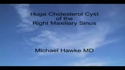 Removal of a Maxillary Sinus Cholesterol Cyst