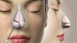 Nose Job Rhinoplasty Animation