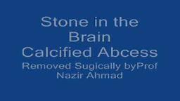 Calcified Brain Abscess