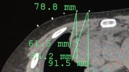 Trans thoracic core needle biopsy by chest ct scan guided