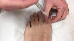 Local anesthesia in big toe for ingrown toenail removal