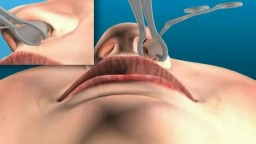 Sinus operation via nose - Nasal Speculum