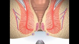 Hemorrhoids Piles Surgery Animation