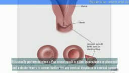 Cervical Biopsy Overview