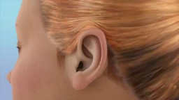 EAR INFECTION With DRAINAGE