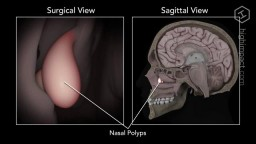 Nasal Polyp Removal Animation