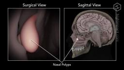 Nasal Polyp Removal Animation