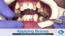 How teeth braces are put
