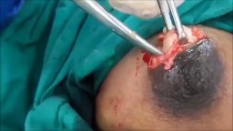 A Big Size Fibroadenoma Removal Under Local Anesthesia
