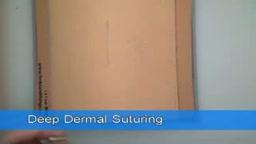 Deep Dermal Suture