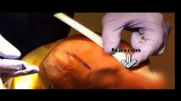 How to place an external ventricular drain