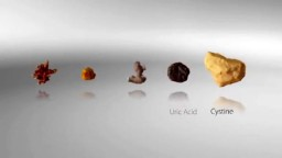 How Do Kidney Stones Form? How Can We Prevent Them?
