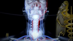 Stroke Management 3D Medical Video