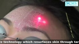 Laser Acne Scar Removal
