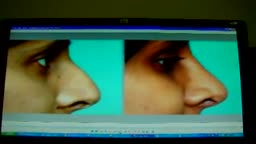 Rhinoplasty Surgery Video