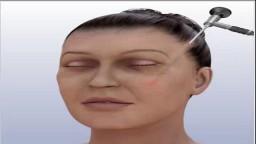 Face Lift Surgery Proceure
