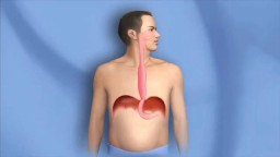 Surgery for Esophagus Cancer,