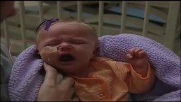 Infant girl with whooping cough