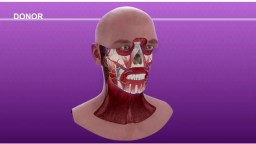 Face Transplant Surgical Animation