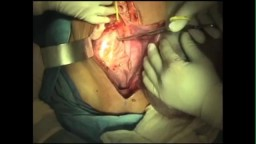 Total Abdominal Hysterectomy with Excision of a Large Ovarian Mass