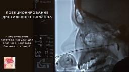Лечение гайморита. Заполнение ОНП во время ЯМИК процедуры 4 (1)