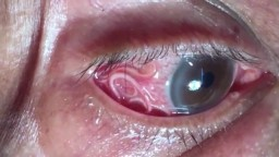 Parasitic Worm removed from Man's EYE