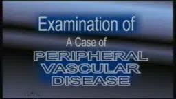Peripheral Vasuclar Disease