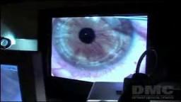 Lasik Eye Surgery Videos