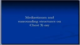 Chest X-ray, Mediastinum