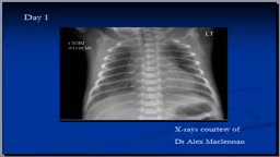 Chest x-ray interpretation, RDS
