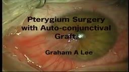 Pterygium Surgery with Auto-Conjunctival Graft