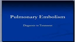 Pulmonary Embolism treatment