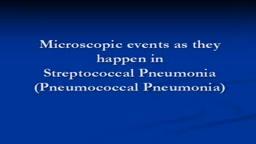 Pneumonia -Streptococcal pneumonia