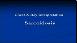 Chest x-ray interpretation -Sarcoidosis