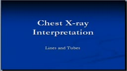 Chest x-ray interpretation showing Tubes and lines