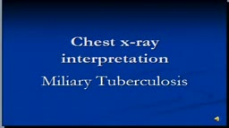 Chest x-ray interpretation-- Miliary Tuberculosis